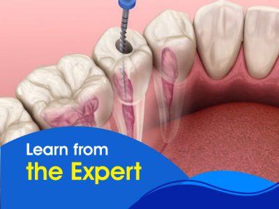 Conservation Dentistry and Endodontics