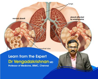 General Medicine – Respiratory System