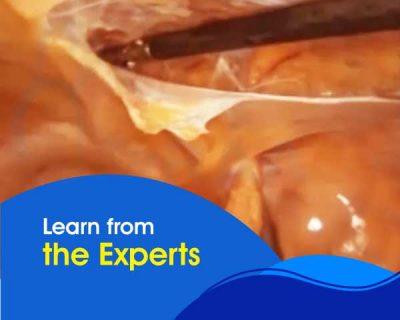 Fundamentals of Laparoscopic Hernia Repair